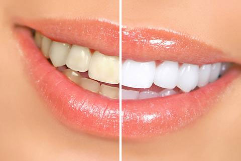 teeth whitening with neoffers.co.uk